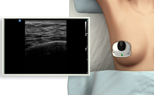 Ultrasound Assessment of the Female Breast