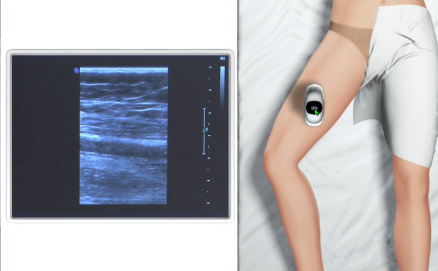 Ultrasound of the Lower Limb Veins for Medical Professionals