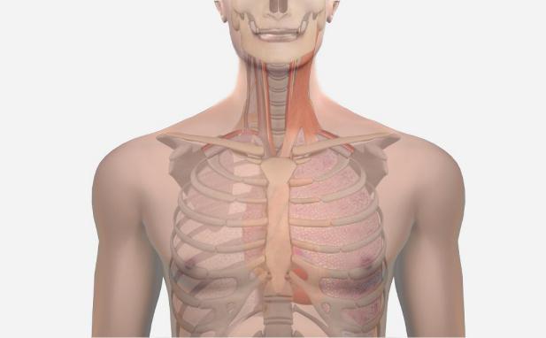 Central Venous Catheterization Internal Jugular Simtics