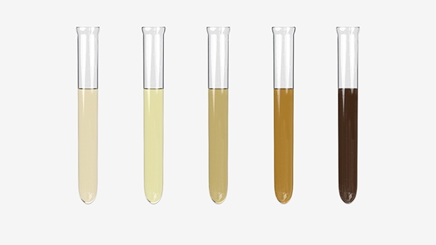 Perform Routine Clinical Urinalysis Test