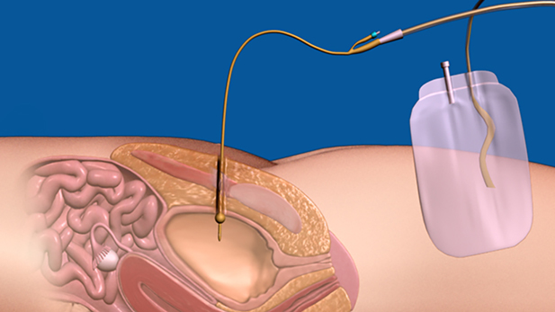 Suprapubic Bladder Catheterization for Medical Professionals