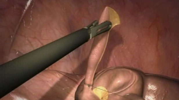 Laparoscopic Appendectomy for Medical Professionals